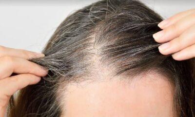 3 Penyebab Rambut Cepat Beruban dan 5 Cara Mencegahnya Secara Alami