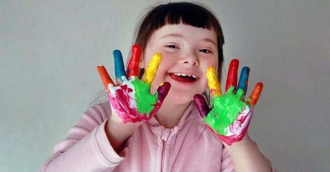 Parents, Ini 4 Jenis Terapi untuk Optimalkan Tumbuh Kembang Anak Down Syndrome
