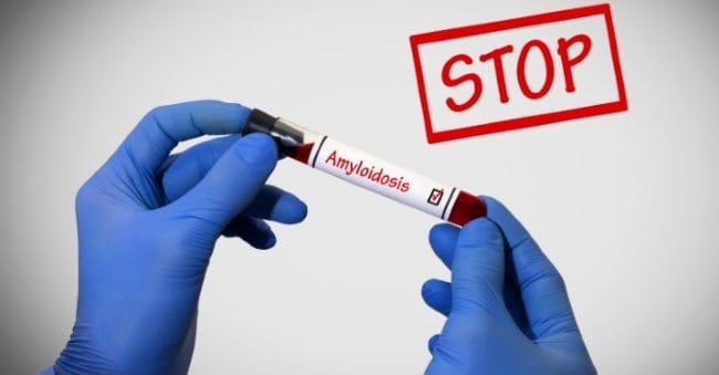6 Faktor Risiko Seseorang Alami Penumpukan Protein Abnormal, Berakibat Fatal!