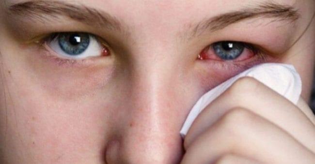 Ada Darah di Mata? Waspadai Gejala Hifema yang Mengganggu Penglihatan