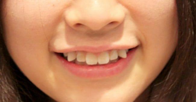 Si Kecil Punya Gigi Gingsul, Apa Penyebab dan Bagaimana Cara Merawatnya?