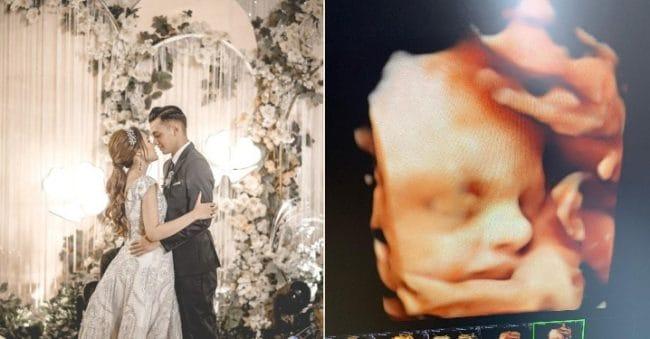 Unggah Foto USG, Hidung Bayi Nella Kharisma Jadi Sorotan Warganet